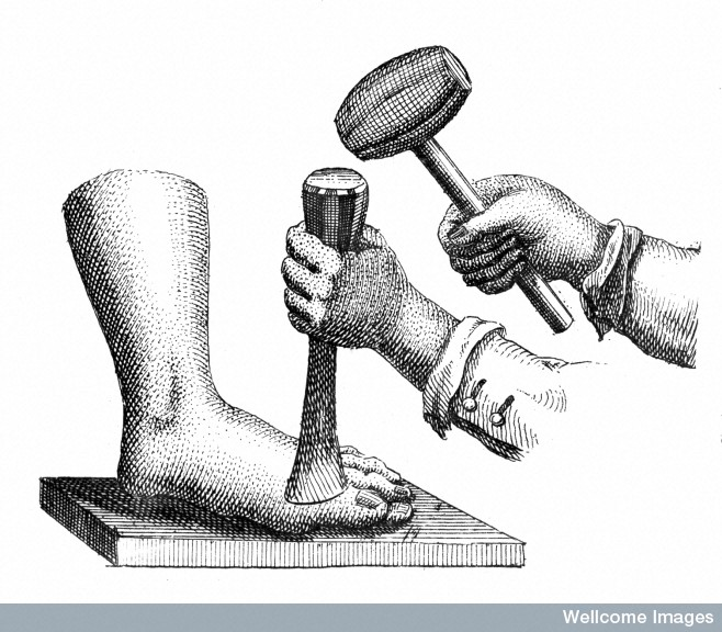 L0009863 Method of amputating the great toe with a mallet and chisel [Historical Fiction Prompt] The Daily Life of a Sea Surgeon (1700). How to get the most out of this special resource for authors. For your Seafare novel.